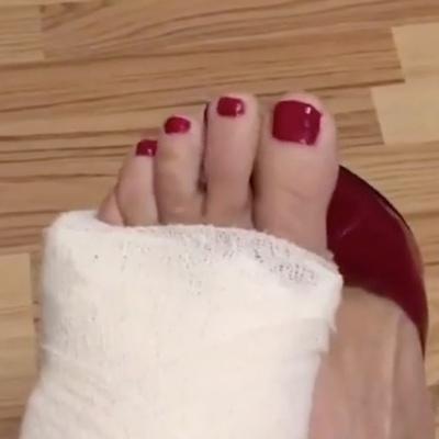 Fetish gips cast Free Leg